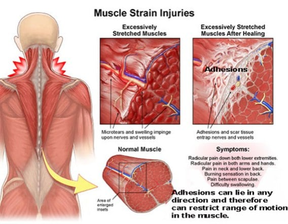 Grastonland Diagram Sports Spinal Care Spinal Sports Care