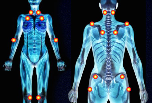 The common tender points of fibromyalgia